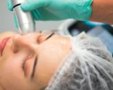 ZABIEGI LUNCHOWE – skuteczne odmładzanie twarzy i ciała
